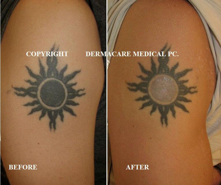 Laser Tattoo Removal Tattoo Removal Tattoo Laser