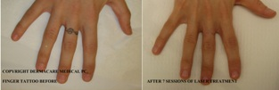 finger tattoo before and after laser treatment